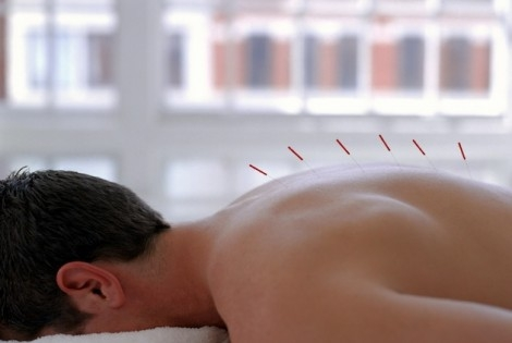 Sore Back and Neck? Try Acupuncture for Pain Relief